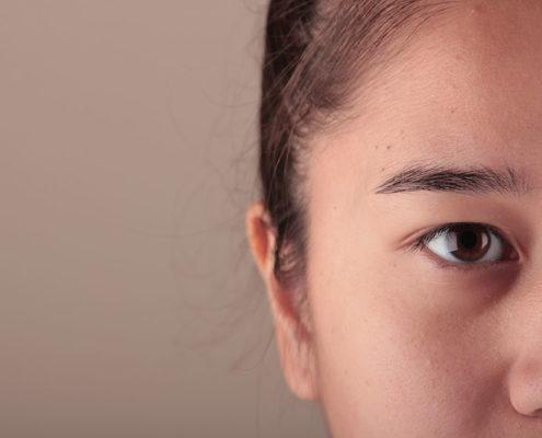 Eyebrow loss in women