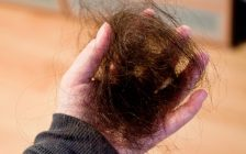 Female hair loss and how to cure it
