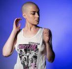 The #baldandbadchallenge helps women deal with baldness