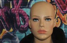 A pre-emptive strike against scarring alopecia