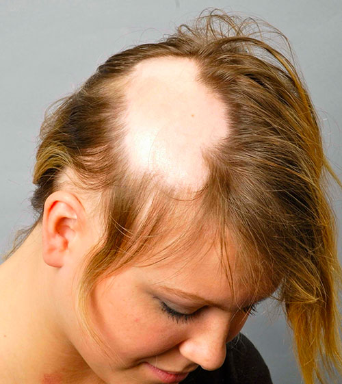 Female alopecia patient