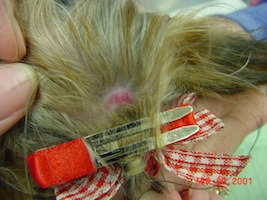 Traction alopecia: the dangers of hair extensions