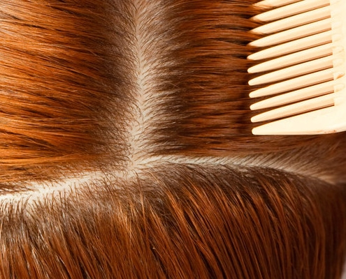 Diagnosis Is Key In The Hair Loss Fight